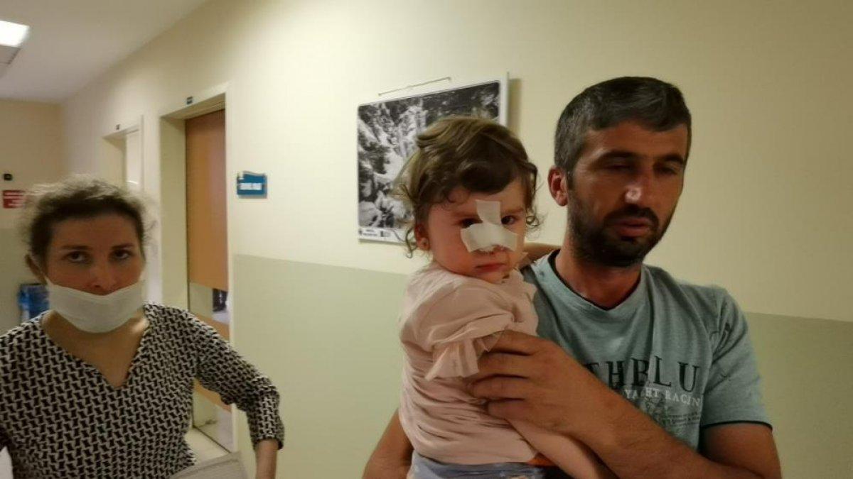 Bursa'da köpeğin saldırısına uğrayan 2 yaşındaki kızın burnu kırıldı