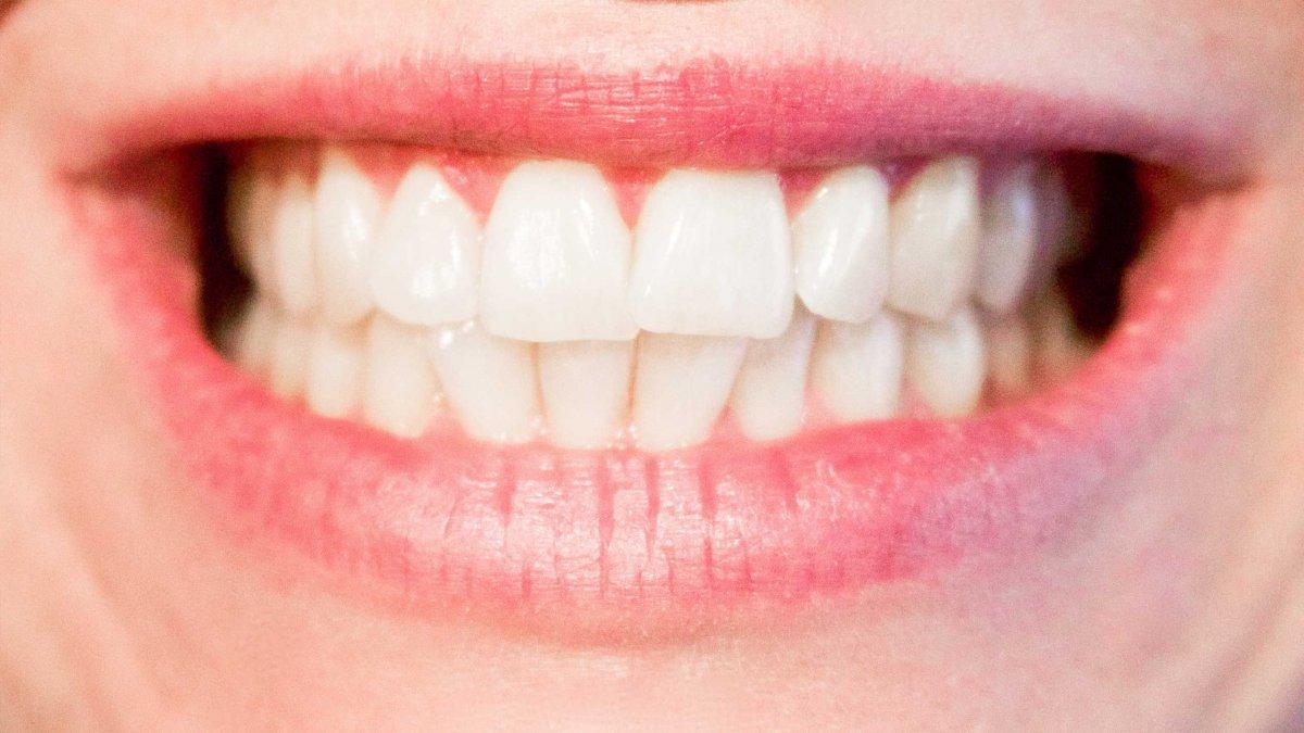 Diş taşlarını temizlemenin 6 doğal yolu #2